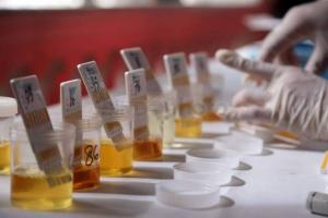 Petugas Gabungan Gelar Tes Urine di Terminal Kediri