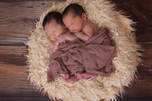 RSUD Dr Soetomo Tangani Kembar Siam Asal kendari
