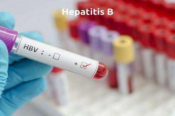 Virus Hepatitis B Lebih Ganas dari HIV